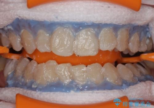 黄ばんだ歯をホワイトニングで白く。の治療中