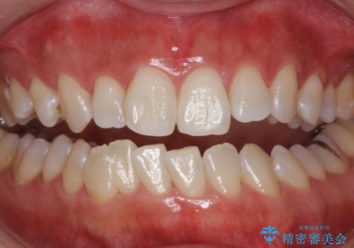 黄ばんだ歯をホワイトニングで白く。の治療後