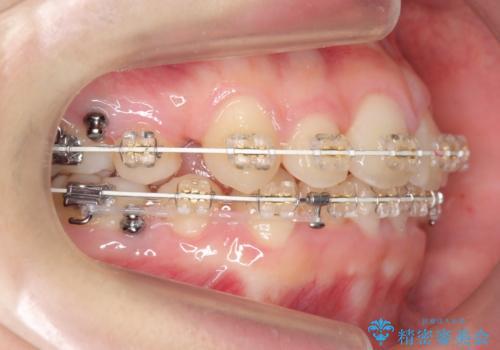 八重歯 奥歯のすれ違い ワイヤー矯正でしっかり治療の治療中