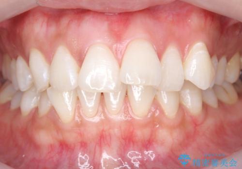 ホワイトニングエクセレントコースでしっかり白くの治療後