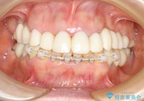 乱れた咬み合わせを治したい 全顎補綴治療の治療中