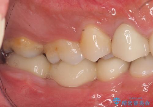 オールセラミッククラウン・歯冠長延長術 抜歯後の補綴の治療後