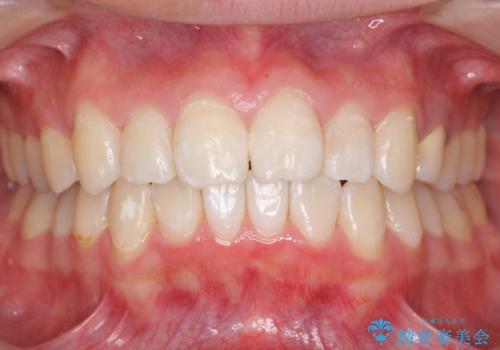 20代女性 前歯のねじれ・出っ歯 インビザラインで奥歯を下げて抜かずに治療の症例 治療後