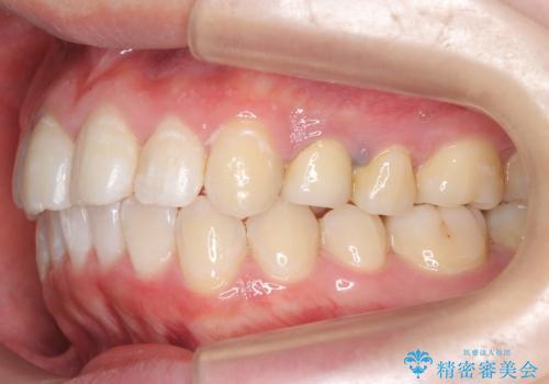 20代女性 前歯のねじれ・出っ歯 インビザラインで奥歯を下げて抜かずに治療の治療後