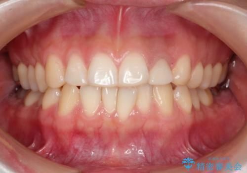口元が出ているのが気になる ハーフリンガルによる抜歯矯正の症例 治療前