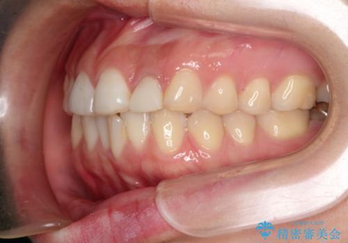 口元が出ているのが気になる ハーフリンガルによる抜歯矯正の治療前