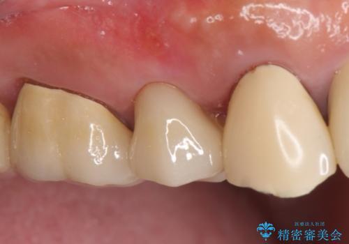 オールセラミッククラウン 土台ごと外れた歯の治療の治療後
