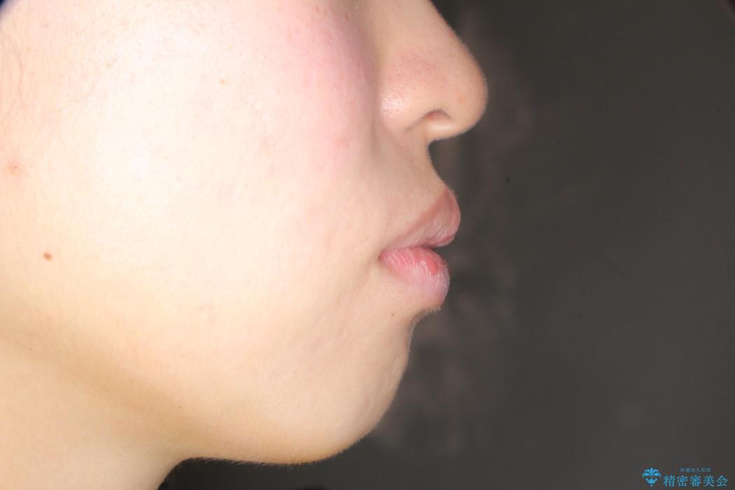 口元が出ているのが気になる ハーフリンガルによる抜歯矯正の治療前(顔貌)