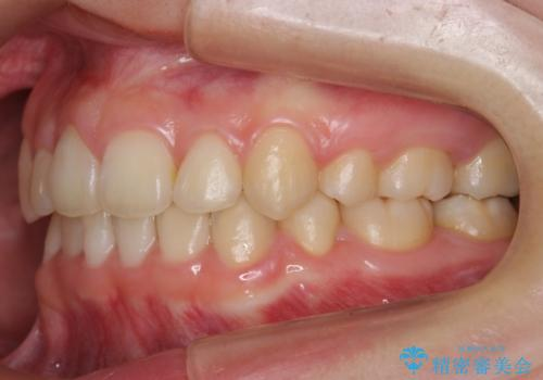 八重歯 奥歯のすれ違い ワイヤー矯正でしっかり治療の治療後