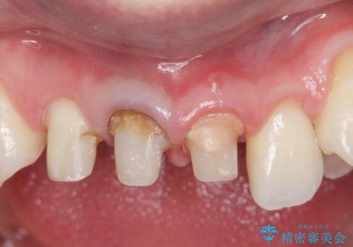 オールセラミッククラウン 前歯を綺麗にしたいの治療中