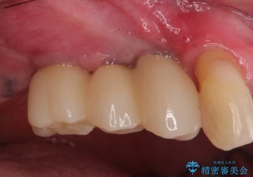 ぐらぐらの奥歯 インプラントでしっかりと咬めるようにの治療後