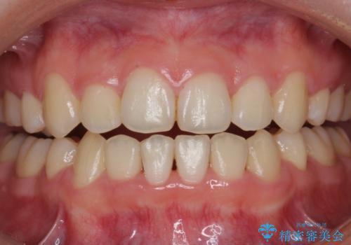 矯正治療後、ホワイトニングで歯を白くきれいに!の治療前