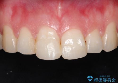 前歯が折れた!セラミックの被せもの。の症例 治療前