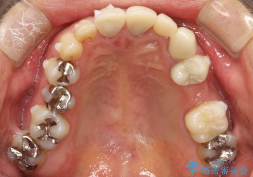 矯正治療・根管治療 被せものの製作 包括的な総合歯科治療による見た目の改善の治療中