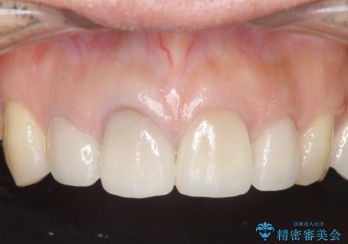 オールセラミッククラウン 前歯の見た目の改善