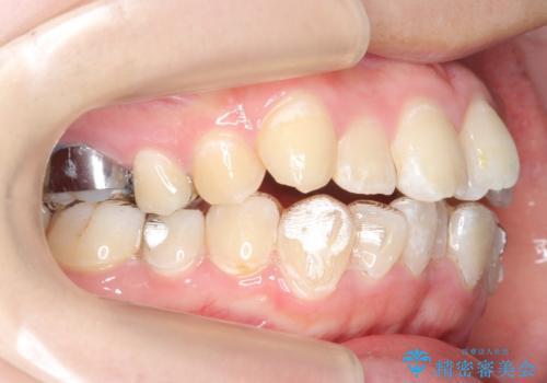 20代女性 前歯のねじれ・出っ歯 インビザラインで奥歯を下げて抜かずに治療の治療中