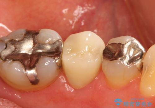 歯が欠けてしまった セラミッククラウンで治療の治療後