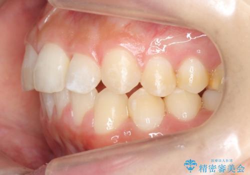 30代女性 抜かない矯正 出っ歯 低位歯を並べましたの治療後