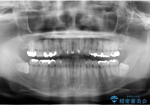 奥歯の精密虫歯治療の治療前