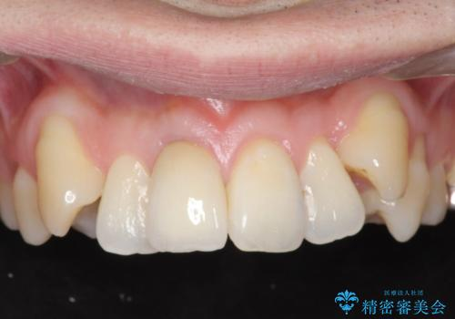 根管治療を含む前歯セラミック治療の治療後