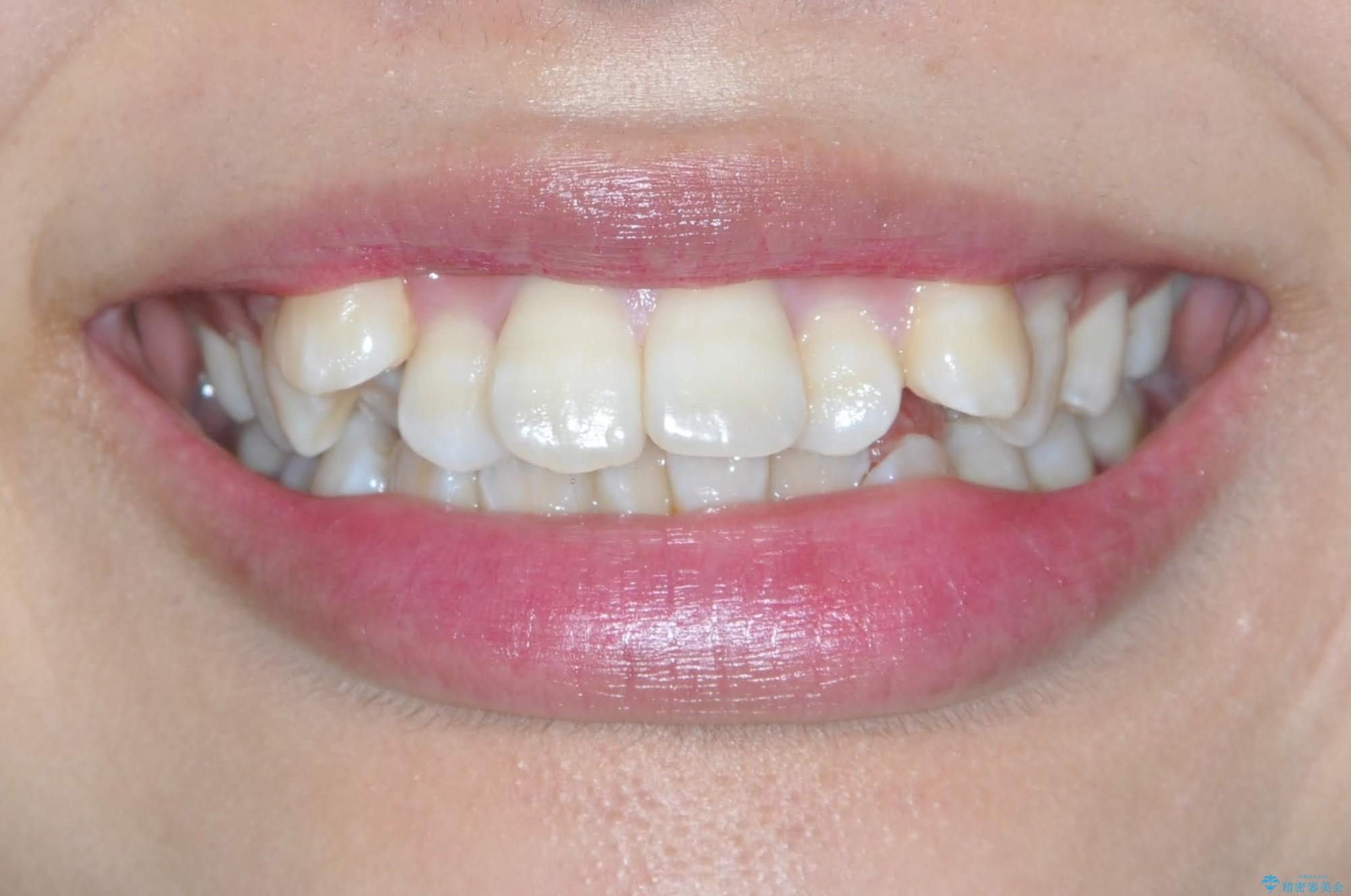 王道・従来のワイヤー矯正 表の装置で手早くきれいな歯並びをの治療前(顔貌)