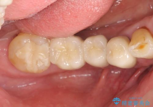 小矯正を伴う臼歯部インプラント補綴の治療後