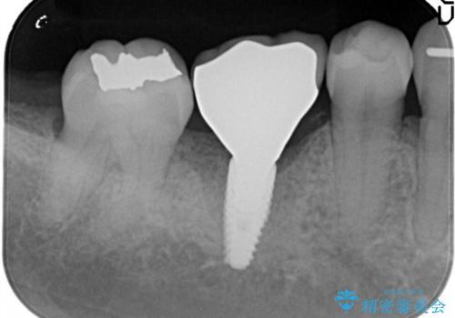 しっかり噛める奥歯。インプラント治療の治療後