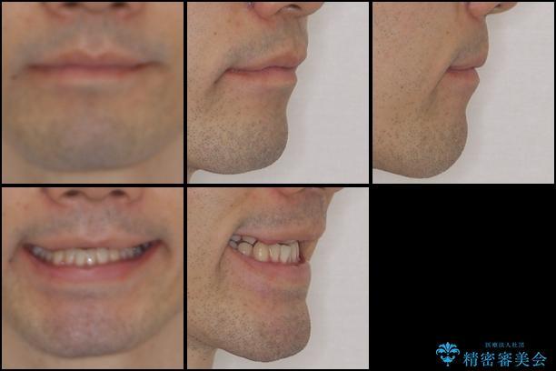 咬みにくい! インビザラインによる反対咬合の改善の治療前(顔貌)