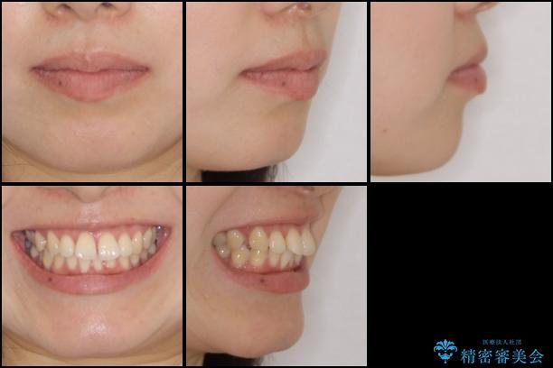前歯のデコボコと出っ歯を治したい インビザラインによる非抜歯矯正治療の治療前(顔貌)