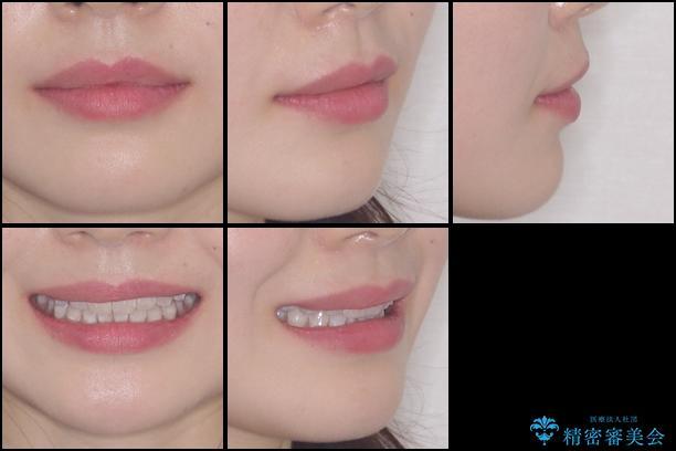 インビザライン・ライトによる前歯部叢生の改善の治療前(顔貌)