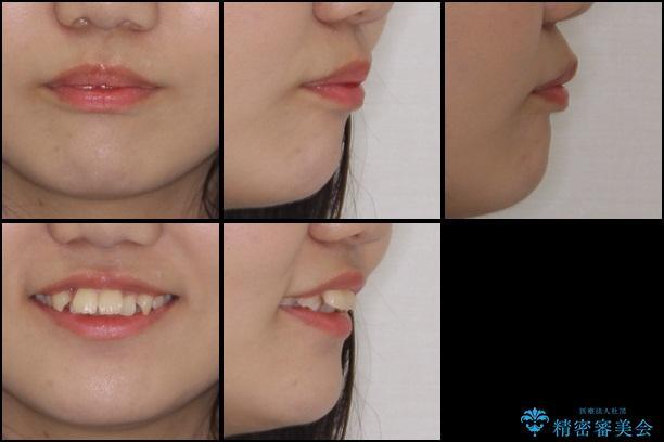 前歯の出っ歯とでこぼこ 目立たないワイヤーで抜歯矯正の治療前(顔貌)