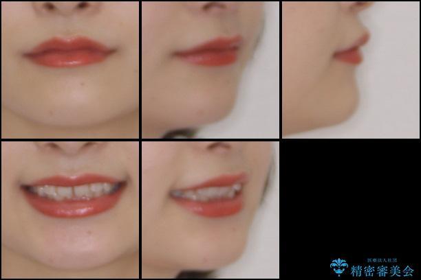 前歯を気にせず笑いたい インビザラインによる矯正治療の治療前(顔貌)