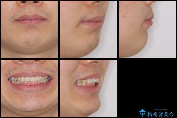 気になる出っ歯をインビザラインで改善の治療前(顔貌)