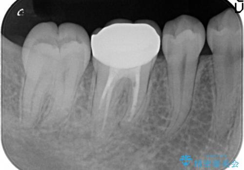 神経まで届く深いむし歯。根管治療~セラミックの被せものの治療後