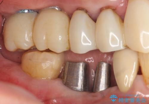 小矯正を伴う臼歯部インプラント補綴の治療中