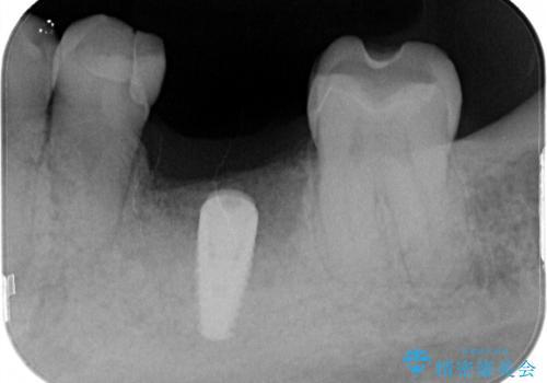 左下奥歯 折れて抜歯 インプラントへの治療前