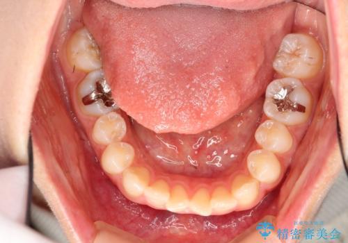 前歯のガタガタを結婚式前にキレイにしたいの治療前