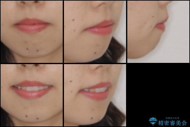 後戻りの再矯正 インビザラインによる矯正治療の治療後(顔貌)
