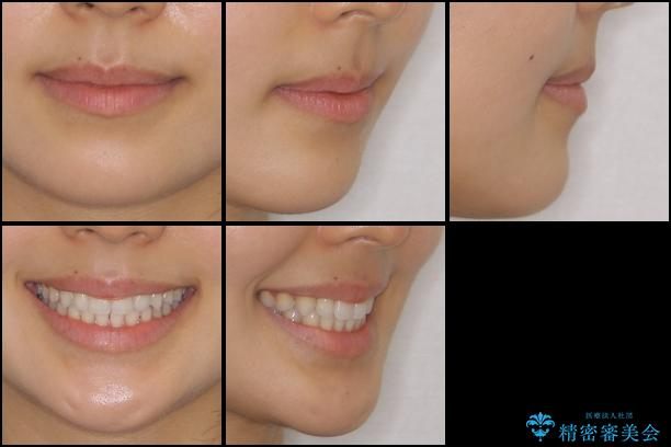 前歯のデコボコを治したい インビザラインによる非抜歯矯正治療の治療後(顔貌)