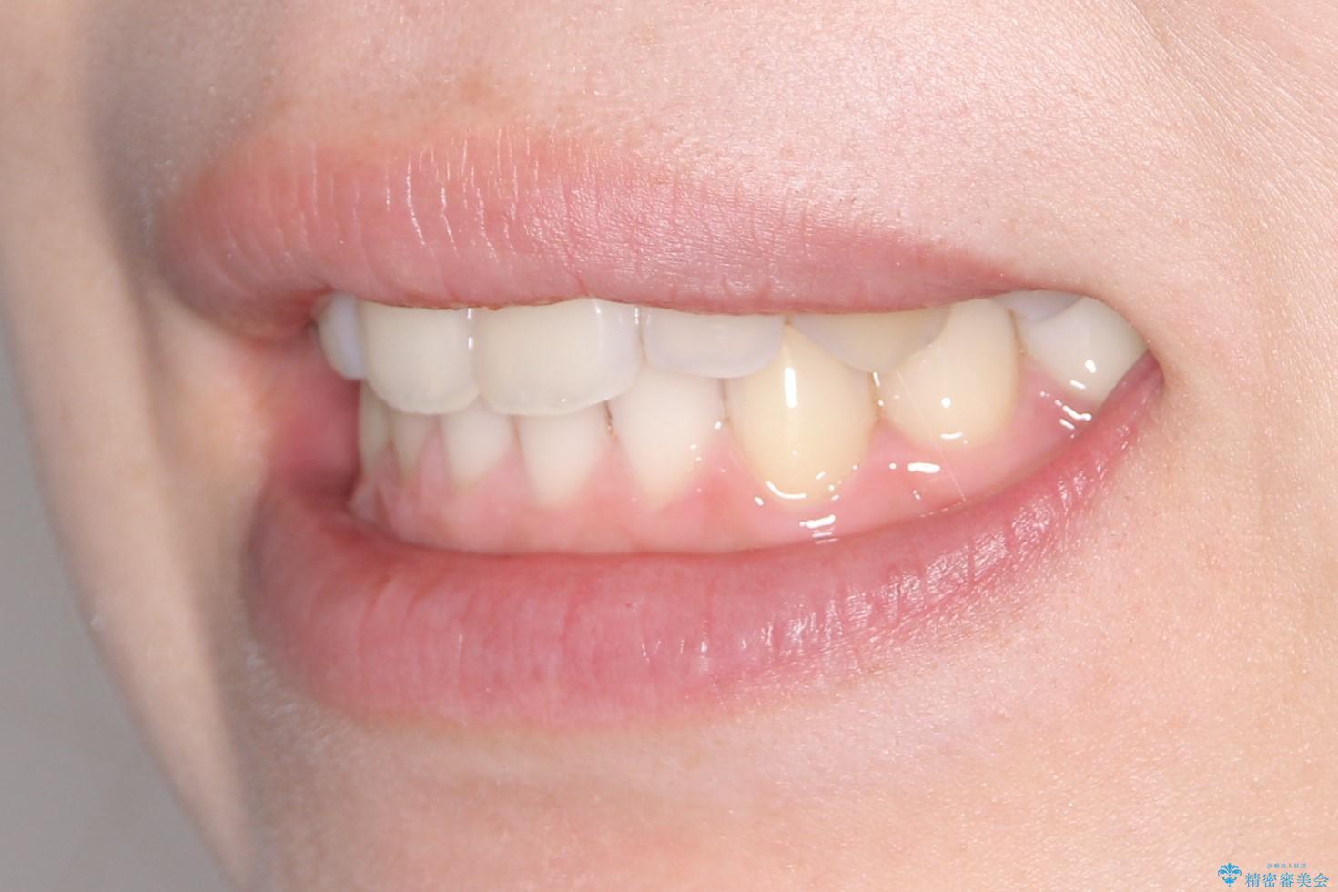 インビザラインでスキッ歯をきれいになおす invisalignの治療後(顔貌)