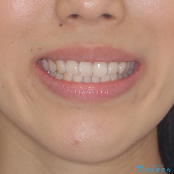 前歯のデコボコをお手軽に治したい インビザライン・ライトによる矯正治療の治療前(顔貌)