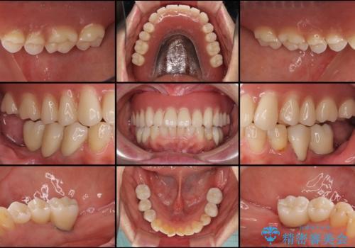 前歯が抜け落ちそう インプラントと入れ歯を用いた全顎治療の治療後