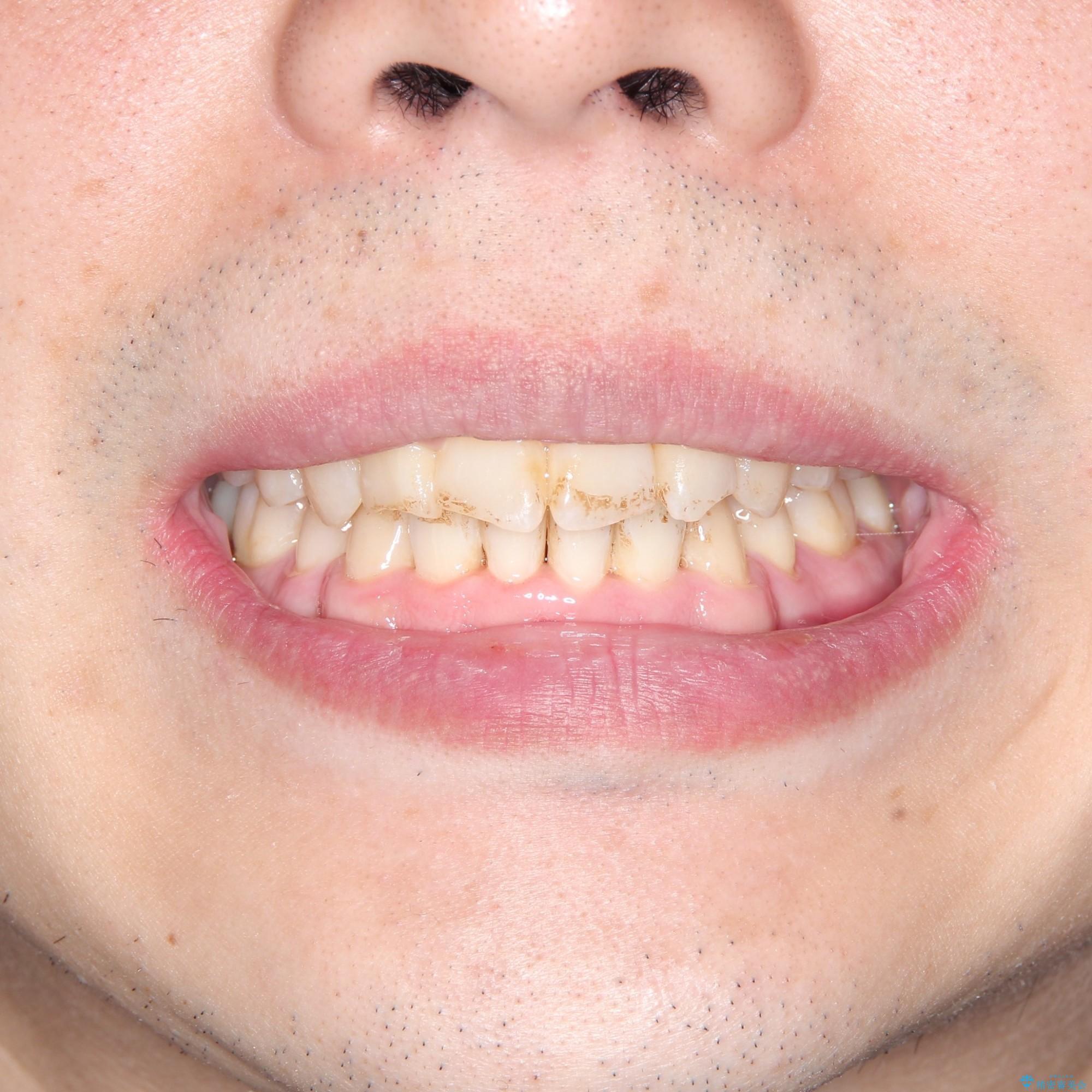 重度のガタつき 表のワイヤー矯正の治療後(顔貌)