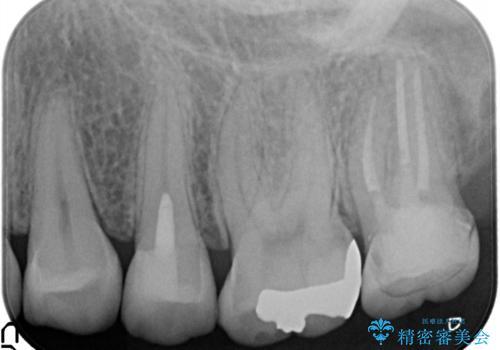 神経に達する深いむし歯。セラミックインレーの治療後