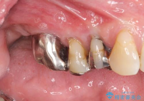 重度に吸収した歯槽骨を再建 インプラント咬合機能回復の治療前
