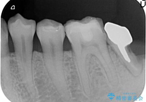 奥歯がかけた、見た目もきれいに治療したいの治療前