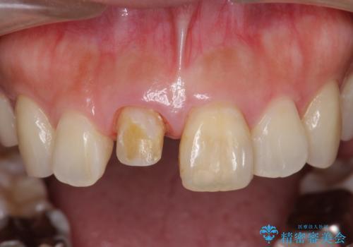 前歯の変色 見える前歯の審美改善セラミック治療の治療中