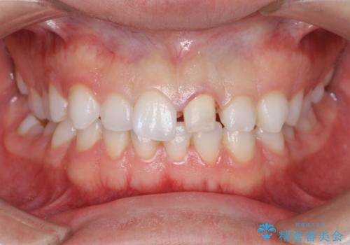 転んで歯が折れた 神経の治療とセラミックによる補綴処置の治療中