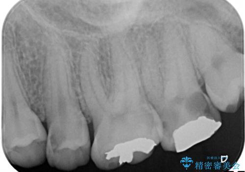 神経に達する深いむし歯。セラミックインレーの治療前