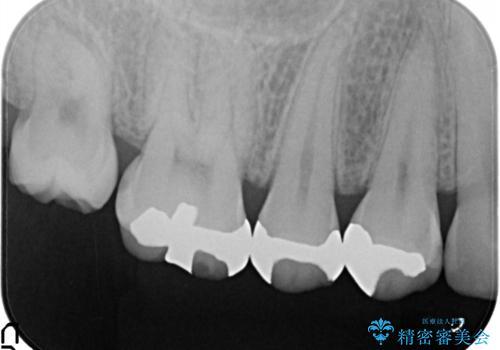 笑ったら見える部分のむし歯治療。セラミックインレーの治療前